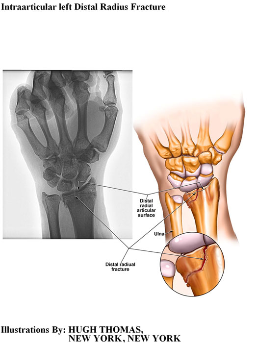 Intraarticular left Distal Radius Fracture