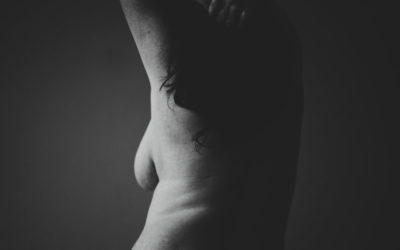 Medical Malpractice – Breast Surgery